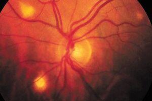 Токсоплазмозный увеит: причины возникновения и основные симптомы, способы лечения заболевания
