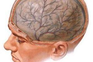 Травматическая энцефалопатия: причини виникнення та основні симптоми, способи лікування захворювання