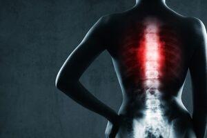 Травма позвоночника: причины возникновения и основные симптомы, способы лечения заболевания
