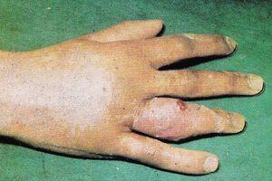 Суставной панариций: причины возникновения и основные симптомы, способы лечения заболевания