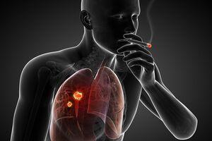 Рак легких: причини виникнення та основні симптоми, способи лікування захворювання