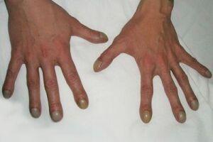 Гипертрофическая легочная остеоартропатия: причини виникнення та основні симптоми, способи лікування захворювання