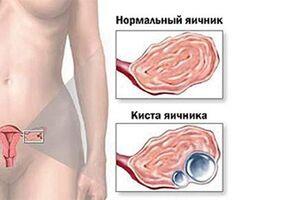 Дермоидная киста яичника: причини виникнення та основні симптоми, способи лікування захворювання