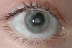 Глаукомоциклитический криз: причини виникнення та основні симптоми, способи лікування захворювання