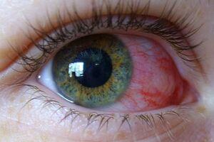 Глазные проявления ВИЧ: причины возникновения и основные симптомы, способы лечения заболевания
