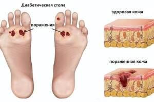 Диабетическая стопа: причини виникнення та основні симптоми, способи лікування захворювання