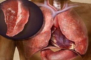 Гнойный бронхит: причини виникнення та основні симптоми, способи лікування захворювання