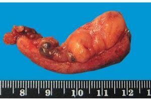 Гнойный аппендицит: причини виникнення та основні симптоми, способи лікування захворювання
