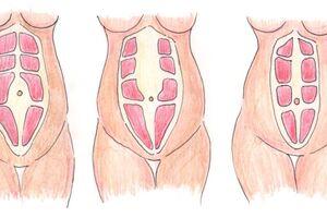 Диастаз прямых мышц живота: причини виникнення та основні симптоми, способи лікування захворювання