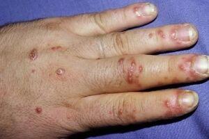 Гонорейный артрит: причины возникновения и основные симптомы, способы лечения заболевания