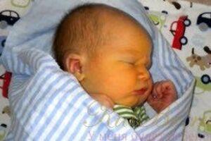 Желтуха новорожденных: причины возникновения и основные симптомы, способы лечения заболевания