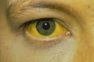 Гемолитическая желтуха: причины возникновения и основные симптомы, способы лечения заболевания