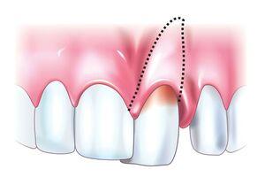 Вывих зуба: причины возникновения и основные симптомы, способы лечения заболевания