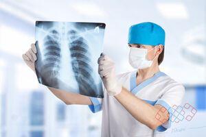 Злокачественные опухоли легких: причини виникнення та основні симптоми, способи лікування захворювання