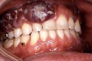 Злокачественные опухоли полости рта: причини виникнення та основні симптоми, способи лікування захворювання