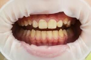 Зубной налет: причини виникнення та основні симптоми, способи лікування захворювання
