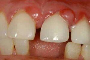 Зубная гранулема: причини виникнення та основні симптоми, способи лікування захворювання