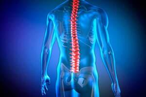 Дискогенная миелопатия: причины возникновения и основные симптомы, способы лечения заболевания