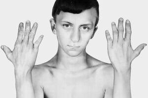 Дисплазия Книста: причини виникнення та основні симптоми, способи лікування захворювання