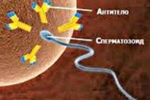 Иммунологическое бесплодие: причини виникнення та основні симптоми, способи лікування захворювання