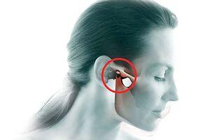 Дисфункция ВНЧС: причини виникнення та основні симптоми, способи лікування захворювання