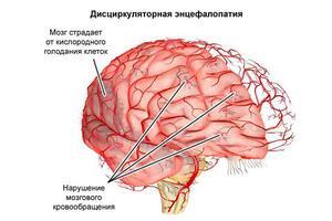 Дисциркуляторная энцефалопатия: причини виникнення та основні симптоми, способи лікування захворювання