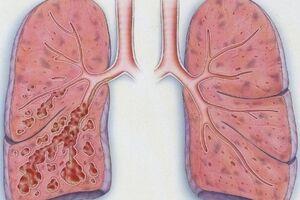 Диффузный пневмосклероз: причини виникнення та основні симптоми, способи лікування захворювання