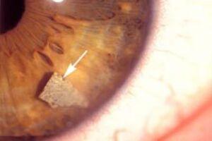 Инородные тела глаза: причини виникнення та основні симптоми, способи лікування захворювання