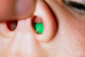 Инородное тело носа: причины возникновения и основные симптомы, способы лечения заболевания