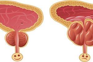 Доброкачественная гиперплазия предстательной железы: причини виникнення та основні симптоми, способи лікування захворювання