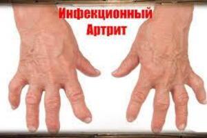 Инфекционный артрит: причины возникновения и основные симптомы, способы лечения заболевания