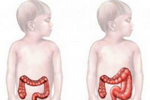 Долихоколон: причини виникнення та основні симптоми, способи лікування захворювання