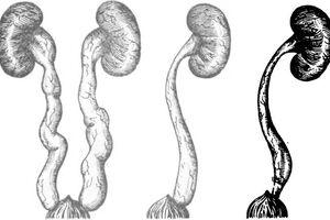 Мегауретер: причини виникнення та основні симптоми, способи лікування захворювання