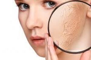 Жирная кожа: причини виникнення та основні симптоми, способи лікування захворювання
