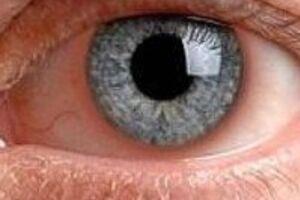 Ирит: причини виникнення та основні симптоми, способи лікування захворювання