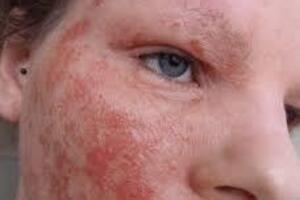 Истинная экзема: причини виникнення та основні симптоми, способи лікування захворювання