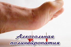 Алкогольная полинейропатия: причини виникнення та основні симптоми, способи лікування захворювання