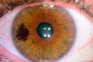Меланома глаза: причины возникновения и основные симптомы, способы лечения заболевания