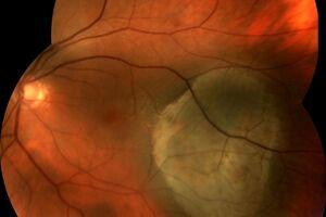 Меланома хориоидеи: причини виникнення та основні симптоми, способи лікування захворювання