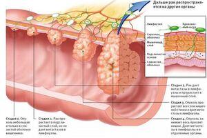 Меланома аноректальной области: причини виникнення та основні симптоми, способи лікування захворювання