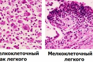 Мелкоклеточный рак легкого: причины возникновения и основные симптомы, способы лечения заболевания