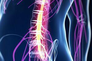 Менингомиелит: причини виникнення та основні симптоми, способи лікування захворювання