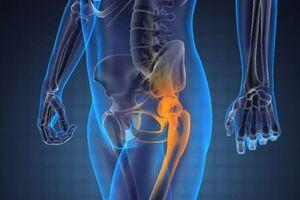 Метастазы в кости: причины возникновения и основные симптомы, способы лечения заболевания
