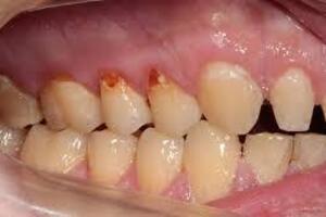Компьютерный некроз зубов: причини виникнення та основні симптоми, способи лікування захворювання