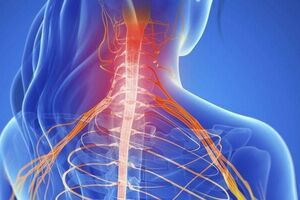 Корешковый синдром: причини виникнення та основні симптоми, способи лікування захворювання