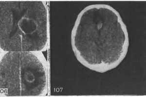 Метастатические опухоли мозга: причини виникнення та основні симптоми, способи лікування захворювання