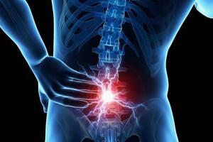 Метастазы в позвоночник: причини виникнення та основні симптоми, способи лікування захворювання