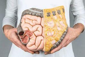 каловий камінь: причини виникнення та основні симптоми, способи лікування захворювання