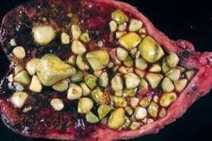 Калькулезный холецистит: причины возникновения и основные симптомы, способы лечения заболевания