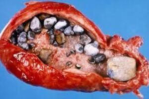 Камни поджелудочной железы: причини виникнення та основні симптоми, способи лікування захворювання